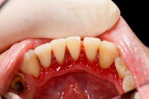 hiv teeth