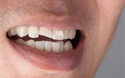 Broken tooth replacement