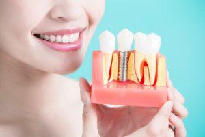 porcelain teeth implants