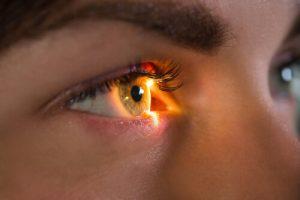 CMV retinitis treatment